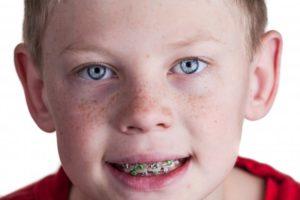 child smiling wearing braces
