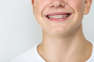 boy's smile with braces between visits to his orthodontist