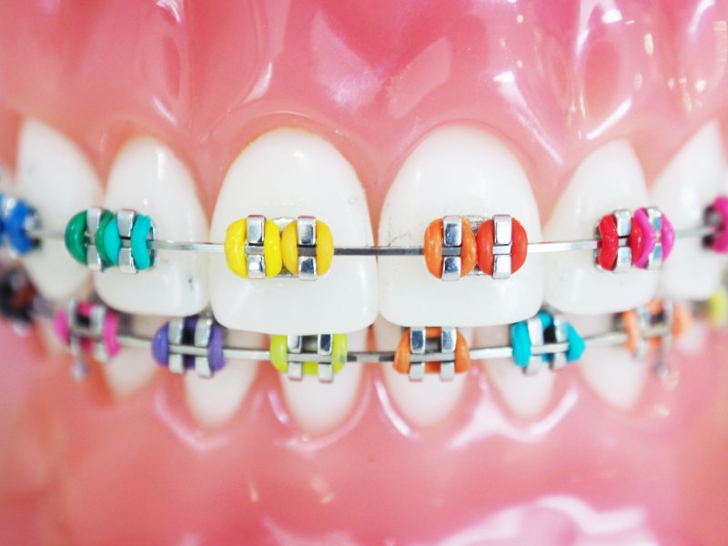 Braces with bands of various colors